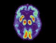Открыта причина болезни Альцгеймера